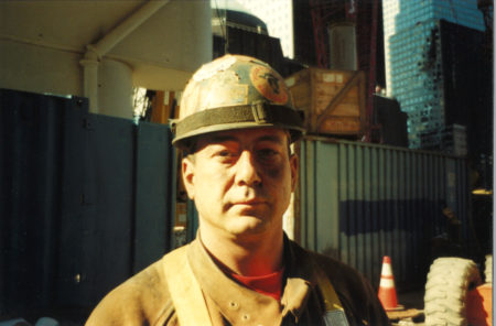 Closeup Photo of an Unknown Worker with a Blackeye